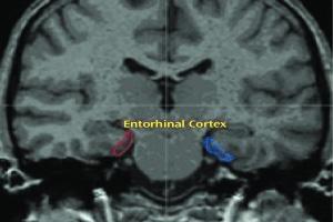 Cortex scan