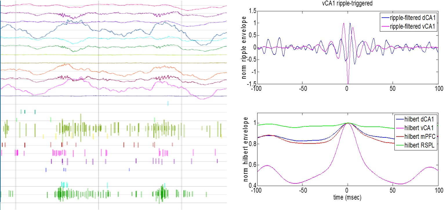 Hippocampal Ripple Traces and Peak-Aligned High-Gamma Cortical LFP