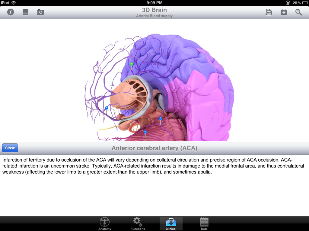Pocket Brain Version 1.0 – Review By Areo Saffarzadeh, MS3